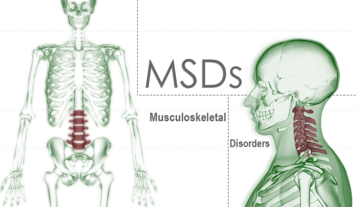 Musculoskeletal Disorders At Work And Away Work Related