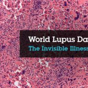 World Lupus Day - SHEilds Health and Safety
