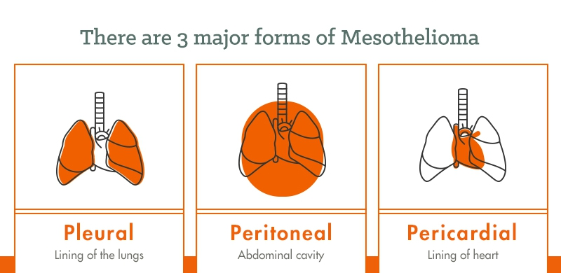 3 major forms of mesothelioma